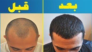 درمان جادویی ریزش مو با این روش خانگی و صددرصد طبیعی | بخش سلامت |