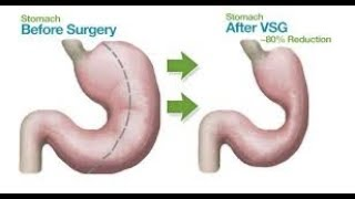 VSG First and second appointment - Bariatric Sleeve Surgery
