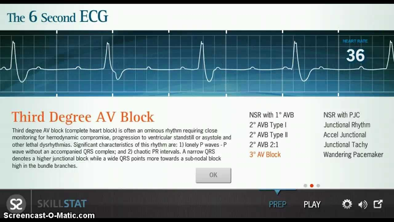 6 second ecg for study youtube