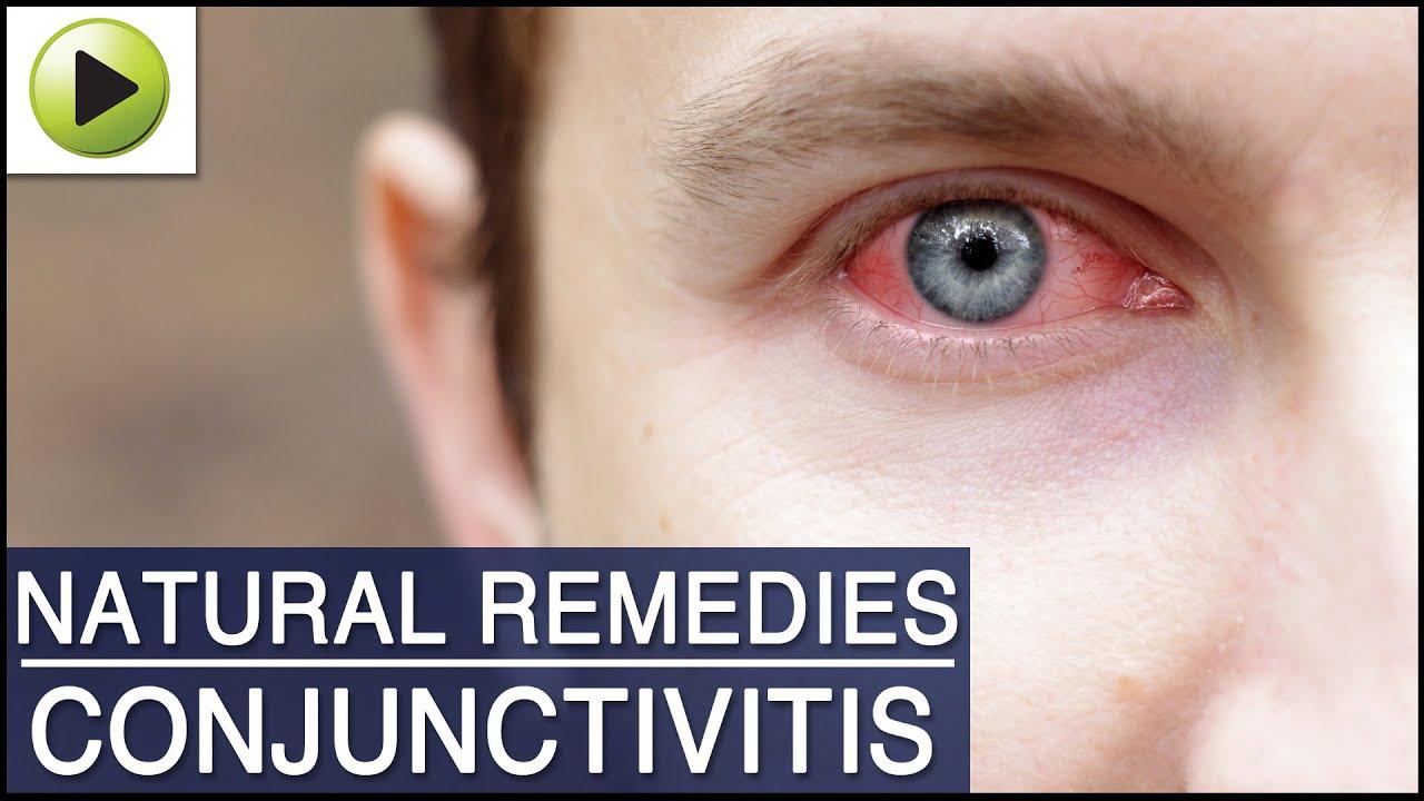 Conjunctivitis Treatment Natural Remedies