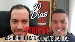 Perfeito 90 Dias Transplante Capilar Turquia