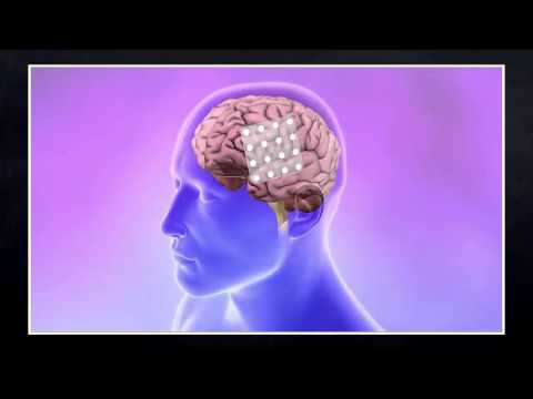 Epilepsy - A Lecture by Dr. Gregory D. Cascino thumbnail