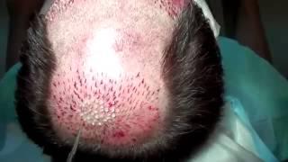 Saç ekimi nasıl yapılır? - saç ektirme