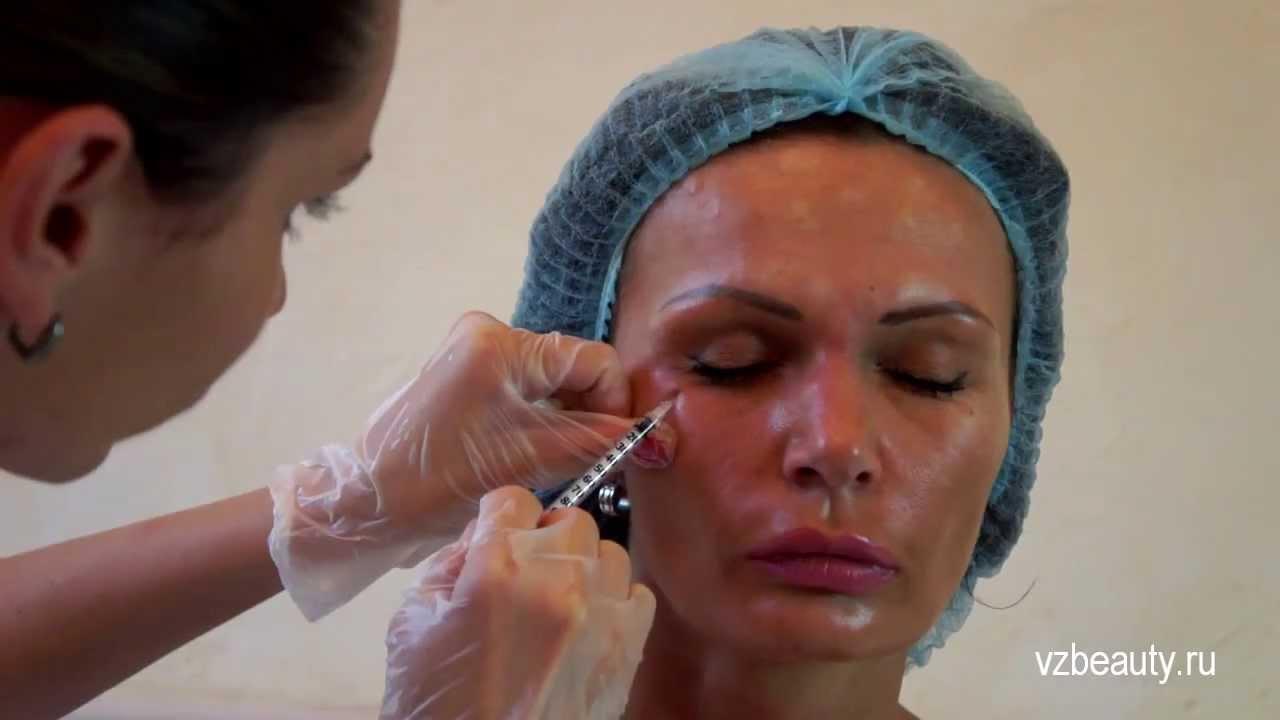 сколько стоит убрать жировики у косметолога