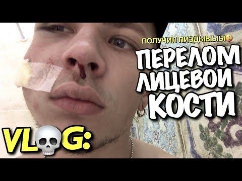 VLOG: МНЕ СЛОМАЛИ ЛИЦЕВУЮ КОСТЬ / Андрей Мартыненко
