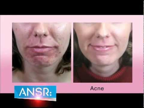 ANSR Beam Acne and Anti Aging Device