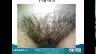 FEMALE PUBIC AREA HAIR TRANSPLANT