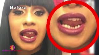 Cardi B's Crooked Teeth - Before & After Dentist