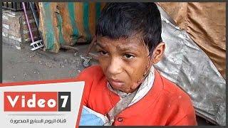 """بالفيديو.. شاهد مأساة """"أحمد"""" طفل انفجرت فى وجهه أنبوبة غاز"""