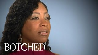 Botched | Sharon Is Ready to Fix Birth Defect Affecting Her Butt | E!