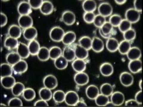 Blood Cell Analysis (English Version) - Colombe Gauvin