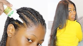 My TYPE 4 NATURAL HAIR Wig Prep Routine for Fast Hair Growth // Ali Peerless Hair