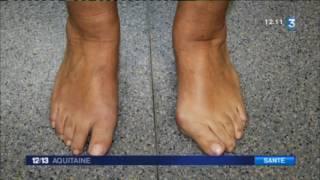 Santé : comment soigner un hallux valgus ou oignon du pied ?