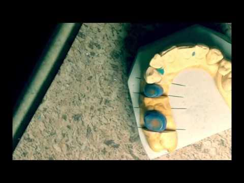 Проект зубной техник . Выпуск 1 . Восковой колпачк , металический каркас , литейная , Лига -2