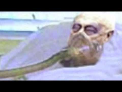 Ariel Sharon's Long Goodbye Part One