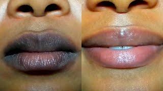 HOW TO LIGHTEN DARK LIPS NATURALLY /Fast Result/ GET PINK LIPS IN 2 DAYS