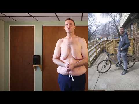 MASSIVE WEIGHT LOSS; 390lbs lost with 40lbs loose skin - Brian Flemming