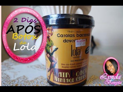 2 dias APÓS Botox da Lola