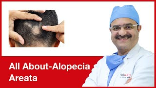 All About-Alopecia Areata | HairMD, Pune