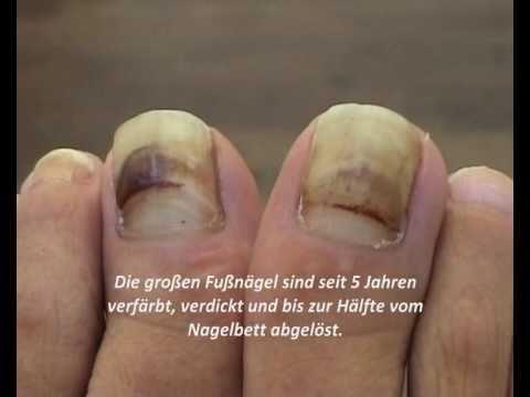 Gelbliche Zehennägel? Dicker Fußnagel? Fußnägel richtig