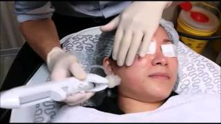 Derma Shine Deep Dermal Rejuvenation at Premier Clinic KL
