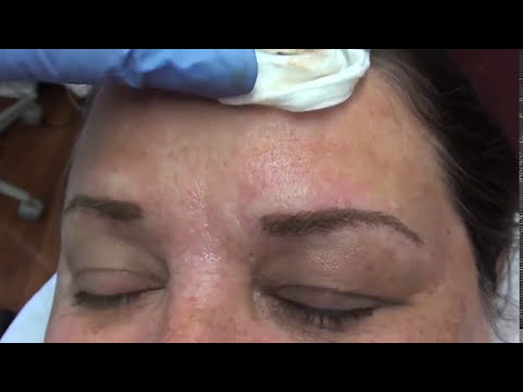 Permanent Makeup Brows Tutorial by Linda Dixon MD