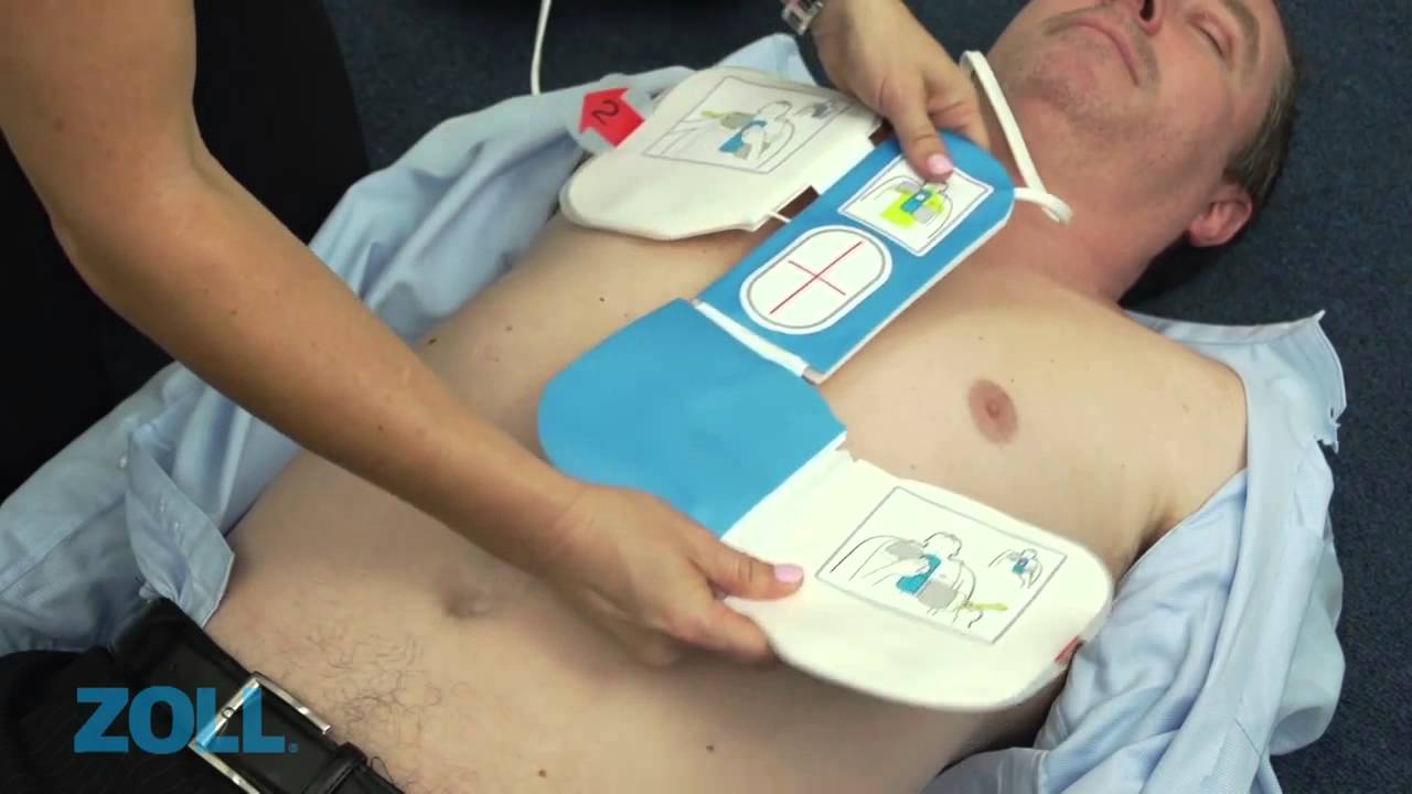 CPR Defibrillator - Real Time Dituation Demonstration