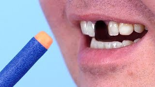 Toy Nerf Knocks Out Tooth!