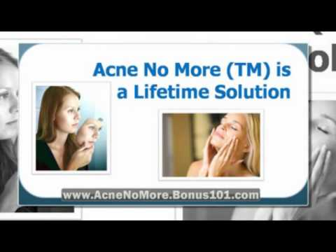acne scars home remedies - getting rid of acne scars - exposed acne treatment reviews