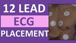 12 Lead ECG Placement of Electrodes | EKG Sticker Lead Procedure