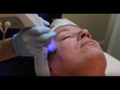 Exilis Elite Facial Skin Tightening | Clarity MedSpa