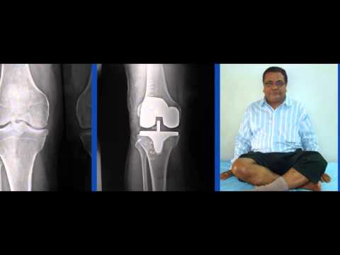 Chirayu Hospital For Orthopedic Hospital In Ahmedabad