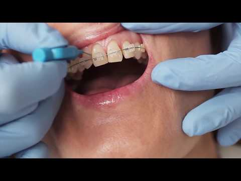 How to clean your around your braces with Gill from Elmsleigh House Dental Clinic
