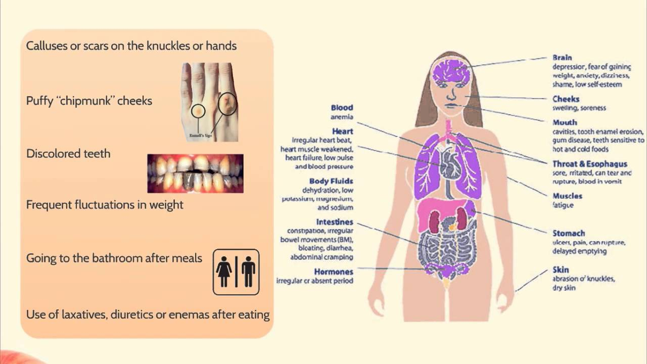 report on bulimia nervosa Globaldata's clinical trial report, bulimia nervosa global clinical trials review, h1, 2017 provides an overview of bulimia nervosa clinical trials scenario.