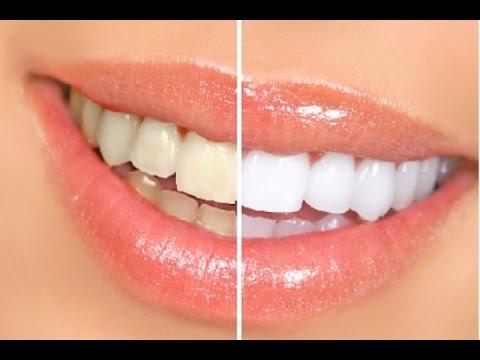 Blanqueamiento dental con Smile Brillant + Sorteo  (cerrado)