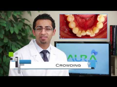 Braces: Common Cases, Crowding, Under Bite, Cross Bite - Aura Orthodontics