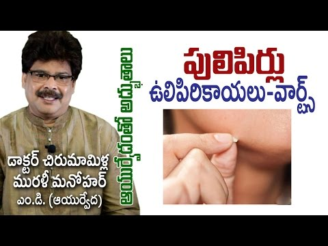 Warts | పులిపిరి కాయలు | Ayurvedic Treatment | Dr. Murali Manohar Chirumamilla, M.D. Photo Image Pic