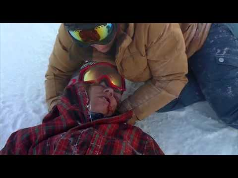 Kevin Pearce almost died in superpipe crash (Viewer Discretion Is Advised)
