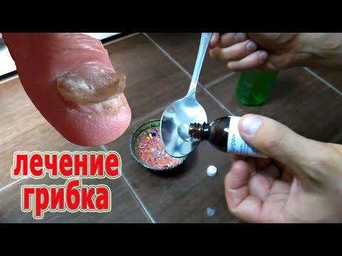 ★Как лечить грибок с помощью уксуса и глицерина. Это средство поможет.