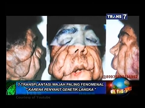 On The Spot - 7 Transplantasi Wajah Paling Fenomenal