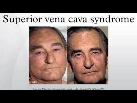 Superior Vena Cava Superior Vena Cava Syndrome