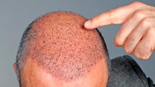 How to Make Hair Grow in Bald Spots