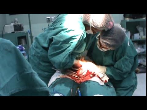 Nacimiento de mis Mellizos Lexter y Lionel 26-05-2009