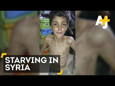 Children Are Starving To Death In Madaya, Syria