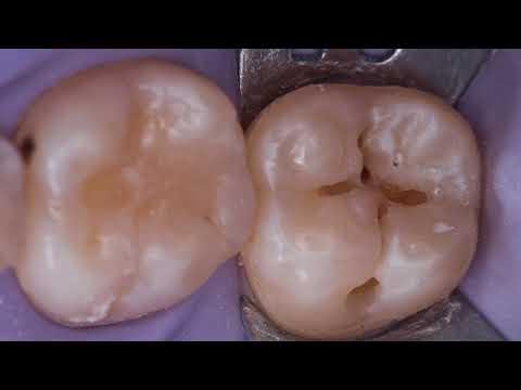 47 зуб метод окклюзионного штампа