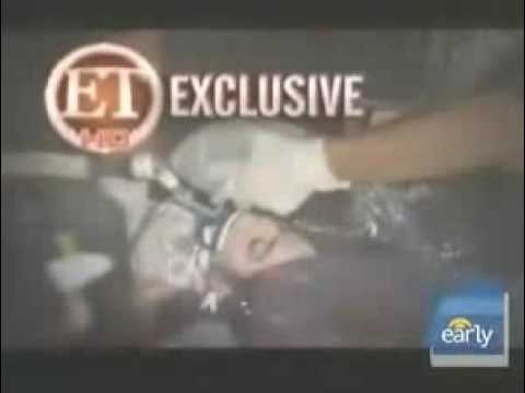 princess diana death photos and michael jackson autopsy picture. Autopsy Set After Michael
