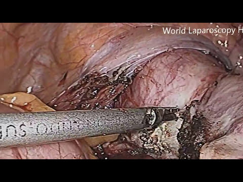 Total Laparoscopic Hysterectomy High Definition Video