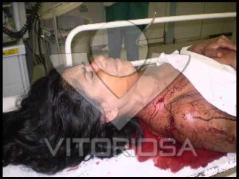 Mulher é baleada no bairro Tubalina