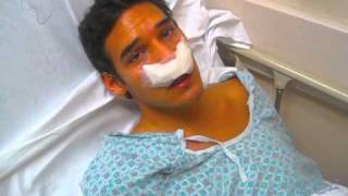 Funny things happen with anesthesia!