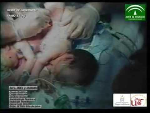 Ciencia / Salud:Separan a dos siamesas unidas por el abdomen